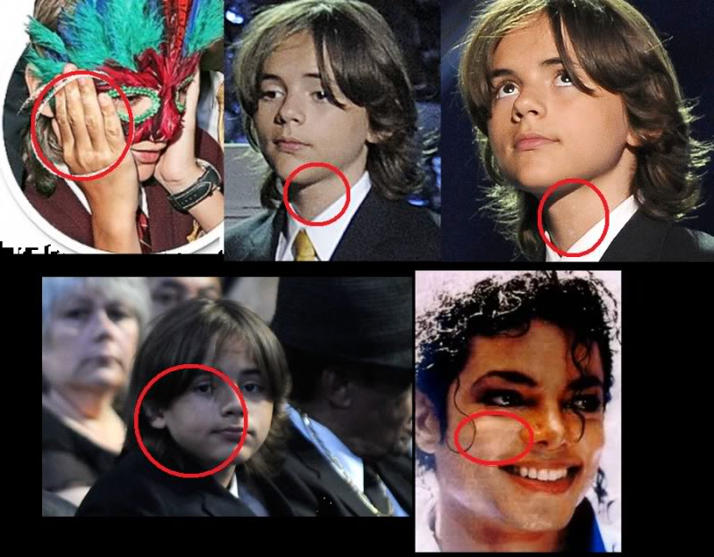 Is this Michael at the memorial?! - Page 5 PrinceMichaelVitiligo