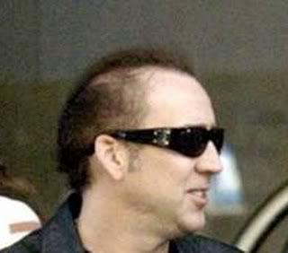 El Aspeto de Dolph Lundgren con su Cabello Nicolas-cage-bald1