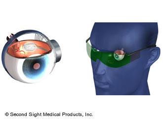 2011 : PUCES IMPLANTABLES, RFID, NANOTECHNOLOGIES, NEUROSCIENCES, N.B.I.C. ET CYBERNETIQUE ! - Page 2 Bioniceye