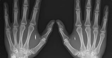 2011 : PUCES IMPLANTABLES, RFID, NANOTECHNOLOGIES, NEUROSCIENCES, N.B.I.C. ET CYBERNETIQUE ! - Page 2 Chipped_hands_X-Ray