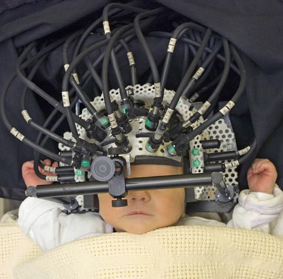 2011 : PUCES IMPLANTABLES, RFID, NANOTECHNOLOGIES, NEUROSCIENCES, N.B.I.C. ET CYBERNETIQUE ! Babyborg