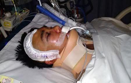 Sinh viên Việt bị đánh tại Melbourne hồi phục tích cực VNminh