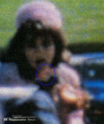 JFK assasination. The driver shot him. WallPaint441-1