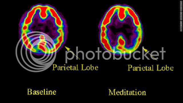 Meditation... T1largmeditationscancourtesy