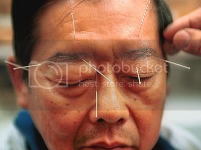 The Medical Thread - Page 6 SINGAPORE-ACUPUNCTURE-SIN1011_400x3