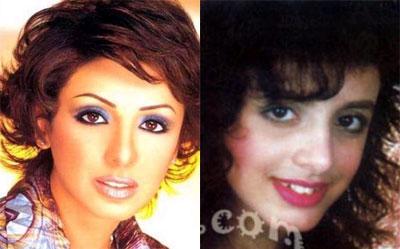 فنانات قبل وبعد التجميل 23