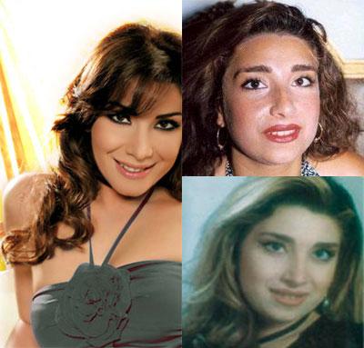 فنانات قبل وبعد التجميل 33