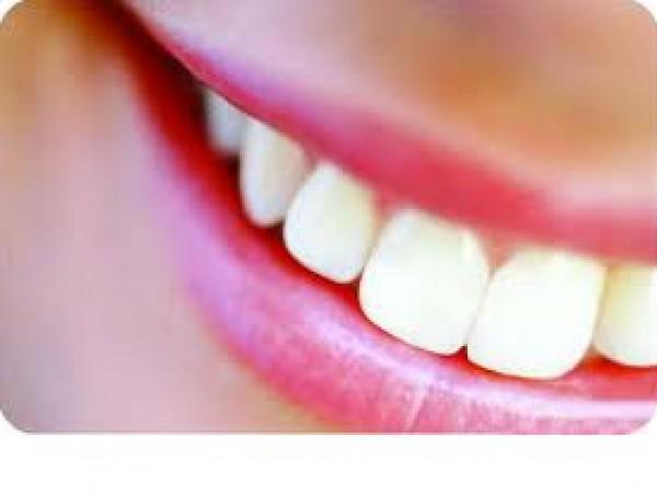 كيف تحصلين على اسنان ناصعة البياض 3910121731