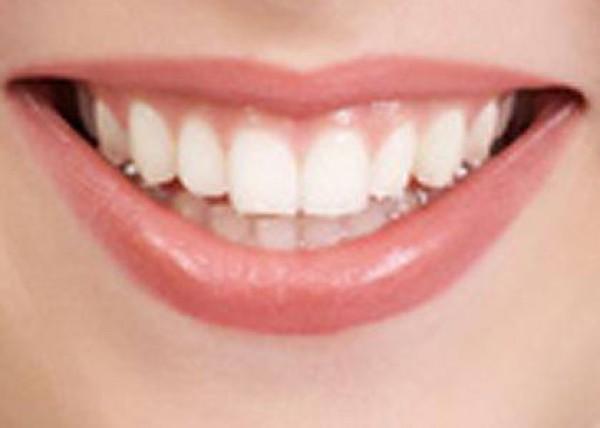 كيف تحصلين على اسنان ناصعة البياض 3910121733