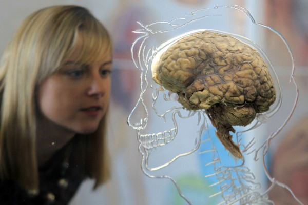 LAZARUS TRIAL - Reconnecting Damaged Brain Function to Humans Declared Brain Dead '???' The-real-brain-exhibit-bristol-science-centre