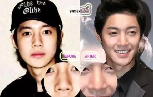 Южно-корейские актеры и идолы сделавшие пластику  15545250