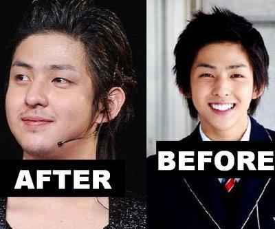 Super Junior phẫu thuật thẩm mỹ (plastic surgery)...hô hô 530428_1271319373298.14res_400_333