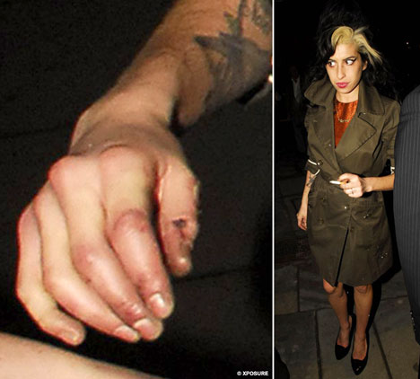 Amy Winehouse (1983-2011) - The life story is in her hands! 2AmyWineXPS_468x422