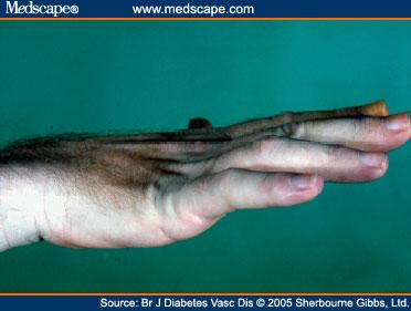 Hand Manifestations of Diabetes Mellitus Bjdvd508017.fig1