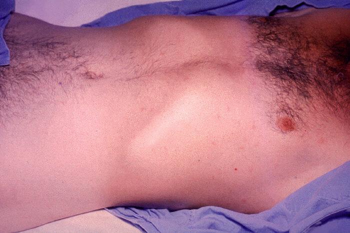 حمى التايفوئيد typhoid fever 211212-1641799-228174-1658470