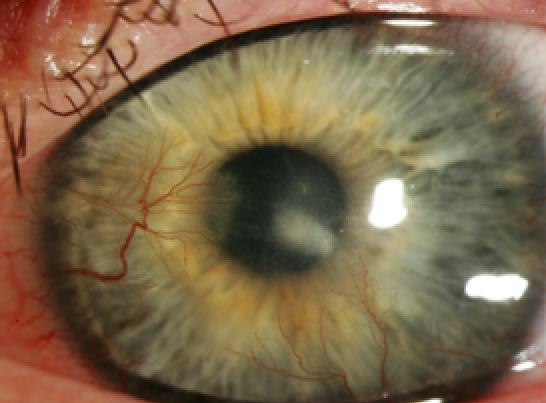 Contact Lens Complications 1189694-1193217-1196459-1638610