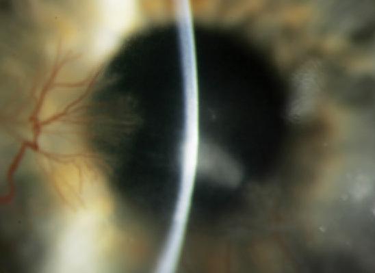 Contact Lens Complications 1189694-1193217-1196459-1638612
