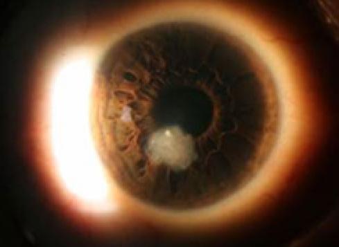 Contact Lens Complications 1189694-1193217-1196459-1638615