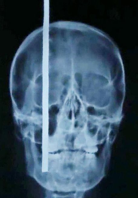 Malgré une barre de fer en travers du crâne, il survit Ob_70ca977ac152a2288a1e9b3755add6b3_crane