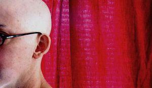 Le pouvoir de l'esprit: un placebo simulant une chimiothérapie provoque une chute de cheveux pour 30% des sujets Bald