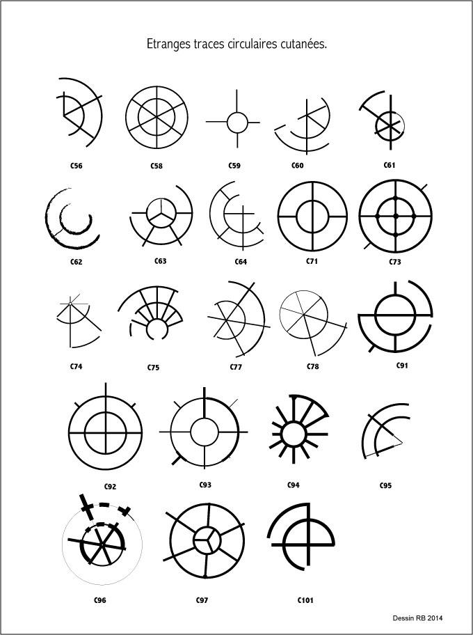 Étranges traces circulaires cutanées.  - Page 3 Les-cas-03-4580650