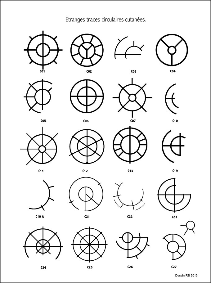 Étranges traces circulaires cutanées.  - Page 3 Les-cas-01-455f1a0