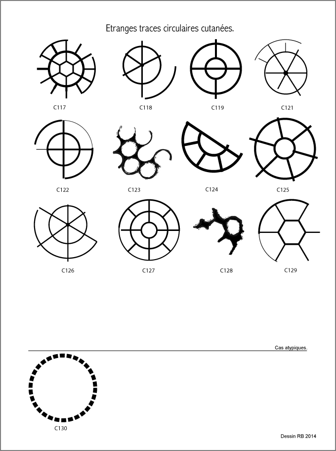 Étranges traces circulaires cutanées.  - Page 3 Les-cas-05-4dca0e6