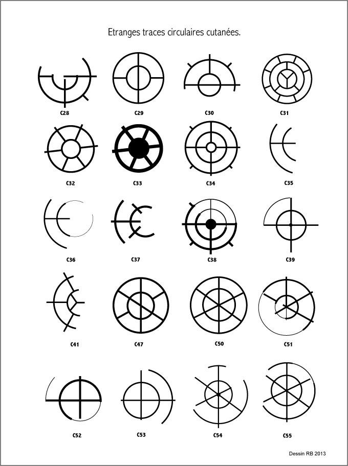 Étranges traces circulaires cutanées.  - Page 3 Les-cas-02-42b25c6
