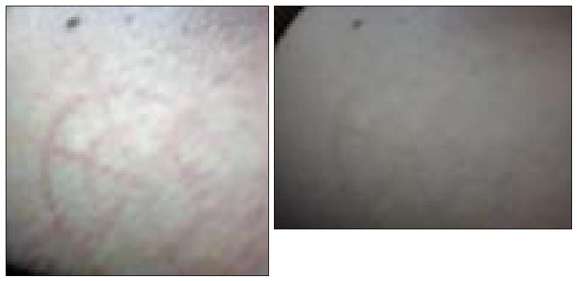 Étranges traces circulaires cutanées.  Signe-25-4143f1e