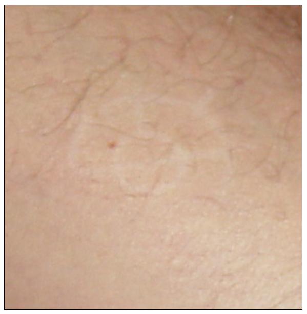 Étranges traces circulaires cutanées.  Signe-30-414a554