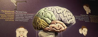Behavior problems, minor physical anomalies & the hand! Brain-hands