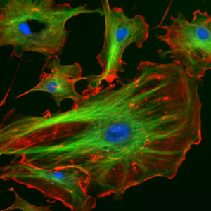The astonishing  language written on microtubules, amazing evidence of  design PD-Microtubule-green-actin-red--300x300