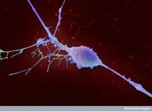The astonishing  language written on microtubules, amazing evidence of  design WC-retinal-ganglion-neuron-blue--300x220