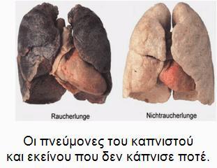 Καπνιζετε? - Σελίδα 2 Cf87cf89cf81ceafcf82cf84ceafcf84cebbcebf311