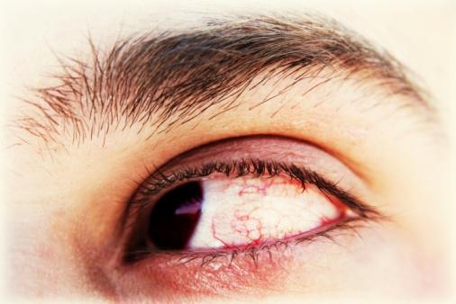 متى تدمع العين دما؟ Eye-JPG_095627