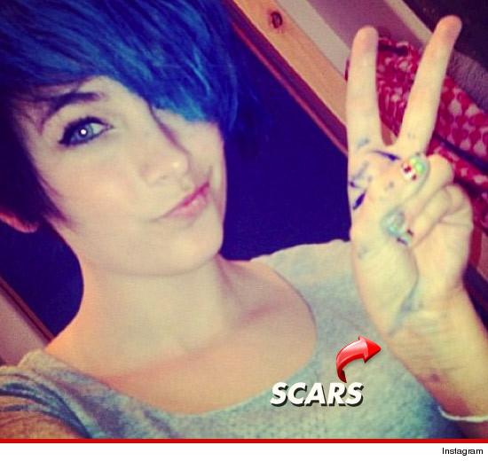 Paris portata d'urgenza in ospedale per tentato suicidio 0605-paris-jackson-twitter-scars-3