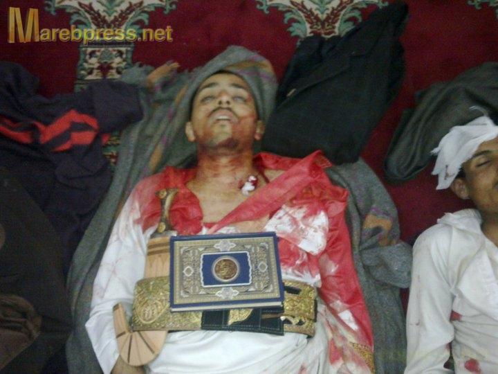 الى من لدية ضمير في اليمن ... هناك مأساة حقيقه في جامعه صنعاء .. والاعلام يضللكم ... اتقوا الله 13633.1300454225.09