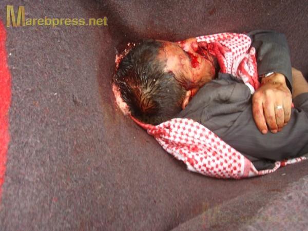 الى من لدية ضمير في اليمن ... هناك مأساة حقيقه في جامعه صنعاء .. والاعلام يضللكم ... اتقوا الله 13633.1300487399.66