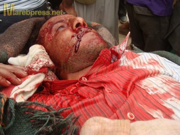 الى من لدية ضمير في اليمن ... هناك مأساة حقيقه في جامعه صنعاء .. والاعلام يضللكم ... اتقوا الله 13633.1300487399.88