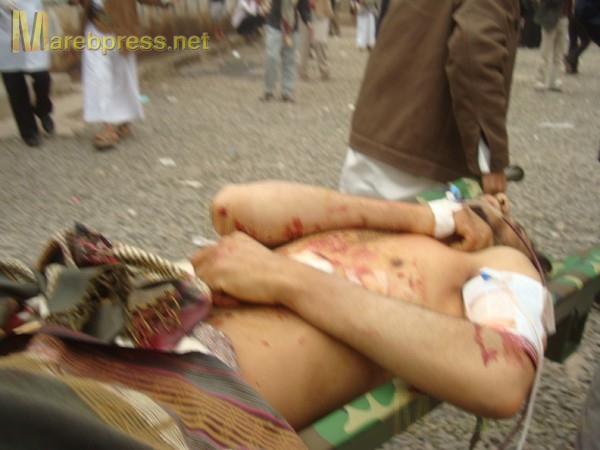 الى من لدية ضمير في اليمن ... هناك مأساة حقيقه في جامعه صنعاء .. والاعلام يضللكم ... اتقوا الله 13633.1300487436.27