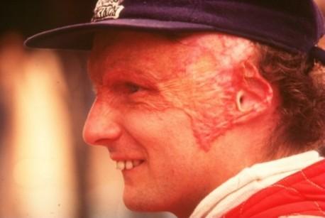 Smiješni nadimci legendi Formule 1 Niki_lauda_gi_mwn