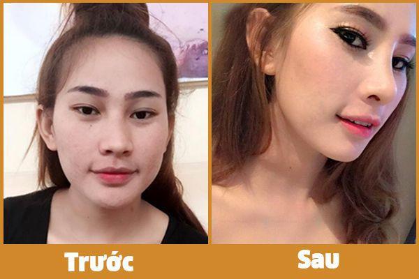 Nâng mũi L line Nang-mui-l-line-2
