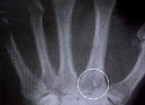 Les implants extraterrestres sont-ils réels ?  - Page 2 Implant%201