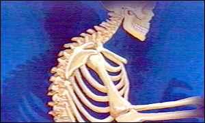 تمارين بسيطة لتجنب آلام الظهر _1619972_skeleton300