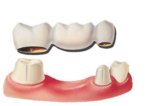 Bọc răng sứ có tác hại gì không? Boc-rang-su-nhu-the-nao-4