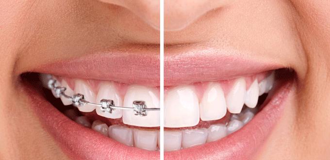 Đơn vị nha khoa niềng răng giá rẻ tại TPHCM Cacloaimaccai