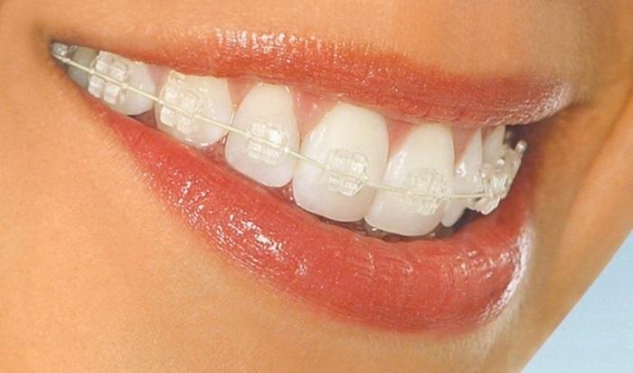 Niềng răng 3 tháng sau sẽ như thế nào? Nieng-rang-mac-cai-pha-le