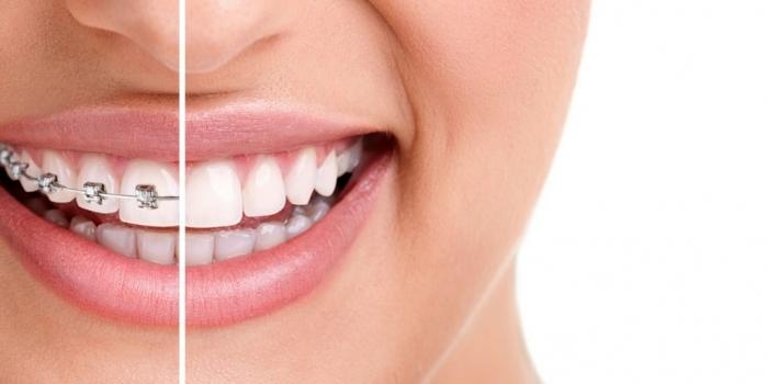 Sau khi niềng răng ăn cháo bao lâu  59937001-thoi-gian-nieng-rang-mat-bao-lau-e1522466970712