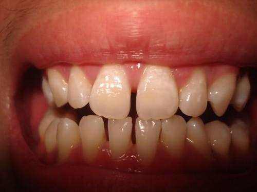 Răng nhiễm màu Tetracyline điều trị thế nào? Rang-b-thua-1