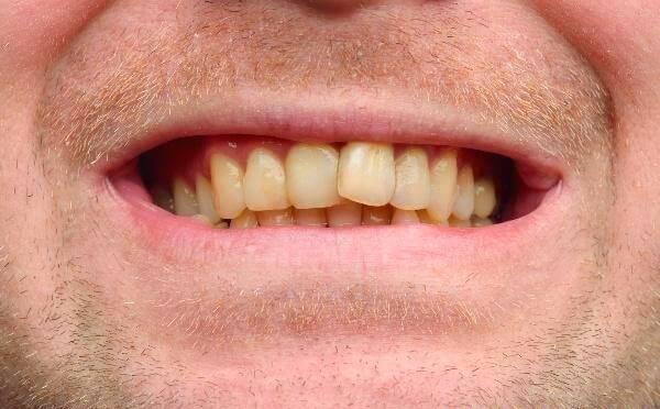 Răng nhiễm màu Tetracyline điều trị thế nào? Rang-nhiem-mau-Tetracyline-1